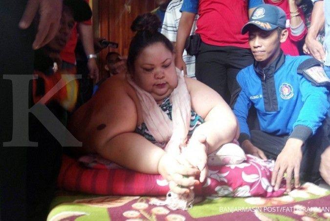 Jumlah penderita obesitas Indonesia berada di peringkat 10 dunia, simak pencegahannya
