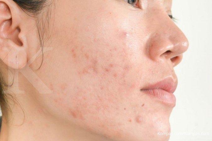 Salah satu manfaat buah naga adalah megobati jerawat di wajah Anda.