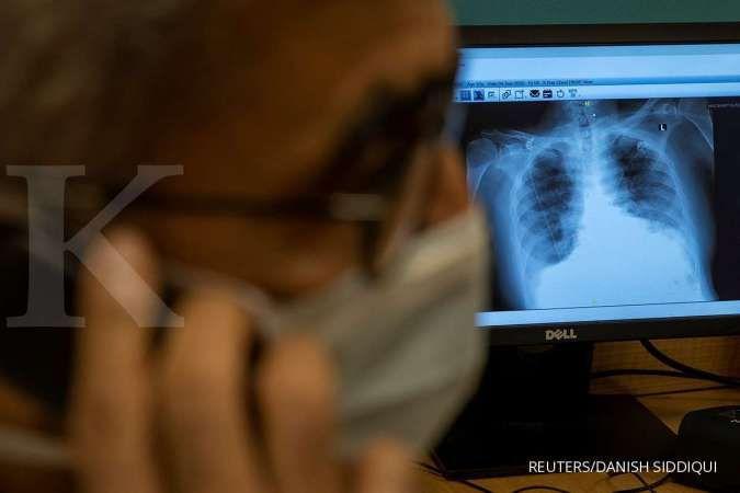 Gejala yang timbul akibat penyebab paru-paru basah bisa diredakan dengan bahan alami
