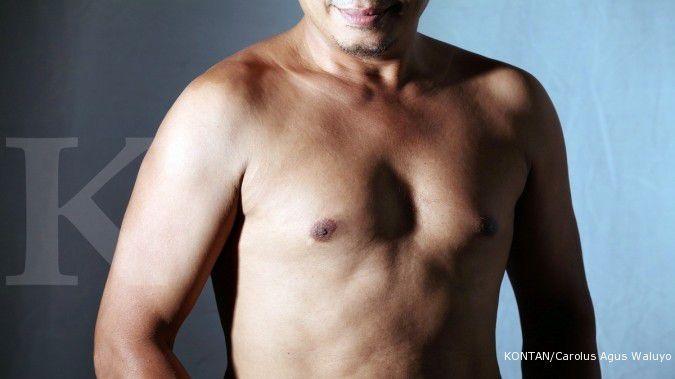 Banyak tahi lalat makin berisiko kanker kulit
