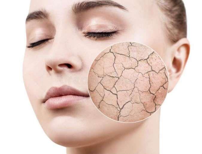 Cari moisturizer untuk kulit kering? Coba 5 bahan ini