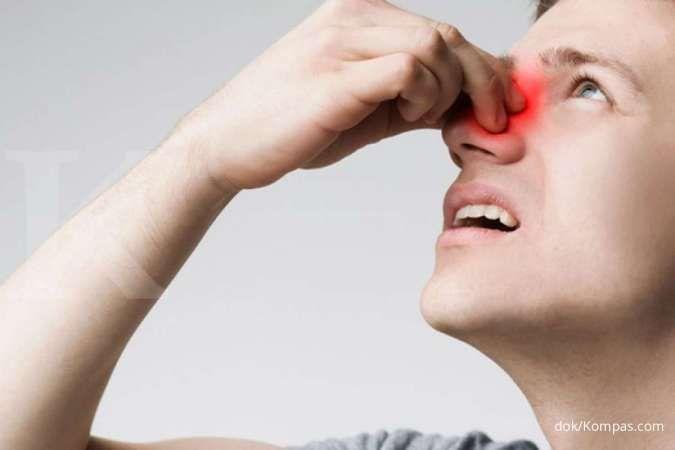 Pendarahan, seperti mimisan, bisa jadi salah satu gejala penyakit liver.