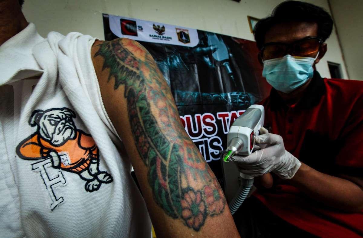 Penghapus tato