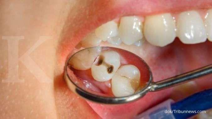 Catat! Ini 5 cara mengatasi gigi berlubang tanpa obat