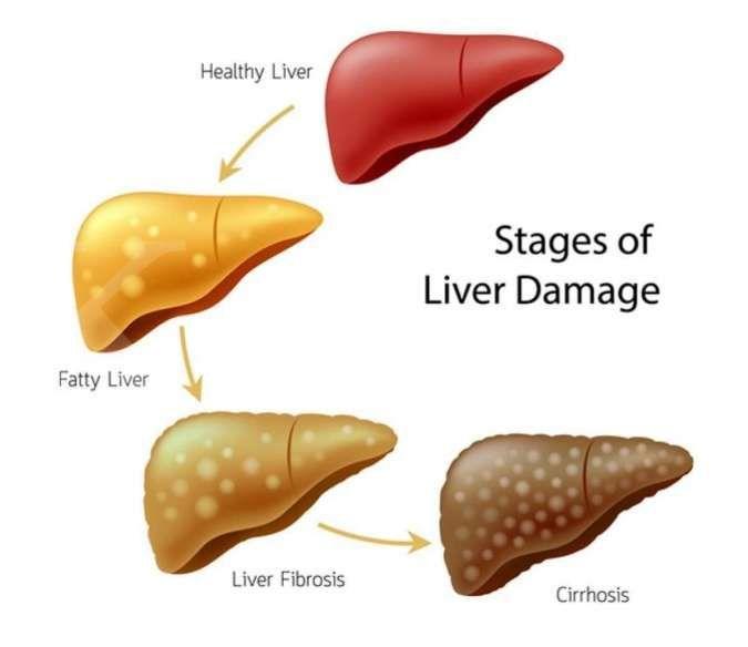 Patut waspadai, 4 gejala penyakit liver ini bisa Anda alami